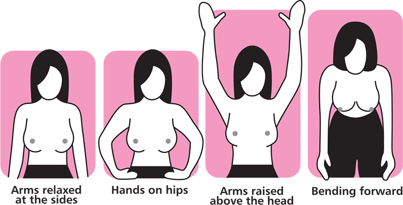 Question You breast self exam discharge