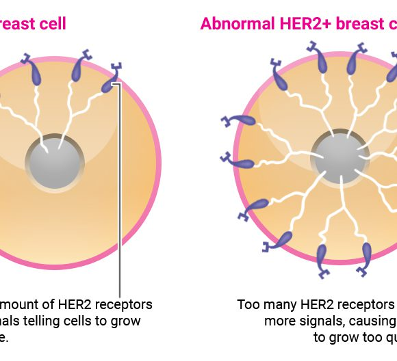 Targeted Therapy Welfare Fund for Breast Cancer – Beacon CSR Programme & Roche Malaysia